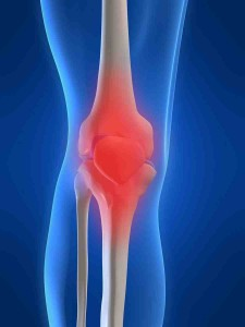 Kneed joint having Arthritis pain