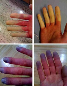 Raynauds Phenomenon